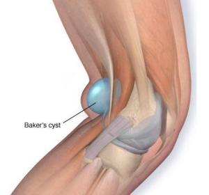 Baker's Cyst Pain